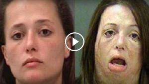 10 ужасающих фото до и после употребления наркотиков!