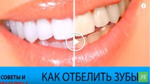 6 способов отбелить зубы в домашних условиях