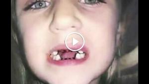 Заподозрив неладное, она сняла на видео, как дантист лечит ее ребенка. От этих кадров мороз по спине…