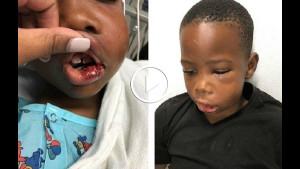 7-летнему мальчику в школе сломали челюсть. Когда мать узнала, кто это сделал, то не поверила своим ушам!