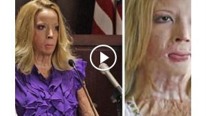 В приступе ярости муж облил ее бензином и поджег. Спустя 7 лет женщина получила новое лицо…