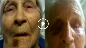 Внуки заподозрили, что их бабушку избивают в доме престарелых. Тогда они установили там скрытую камеру…