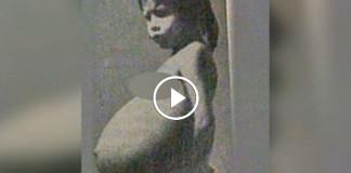 В больницу доставили 5-летнюю девочку с огромным животом